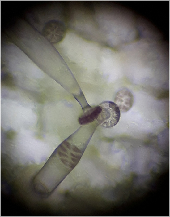 photoblog image Glandular hairs on butterwort leaf